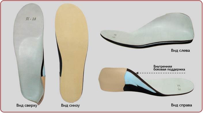 ортопедические стельки для плоско вальгусной стопы